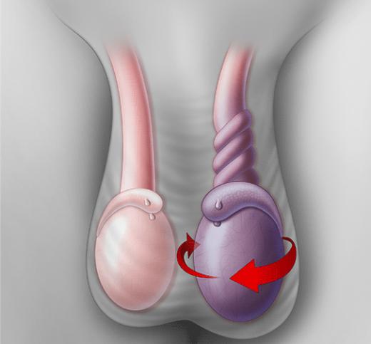 torsione testicolare