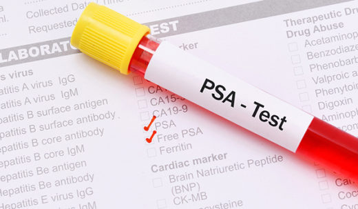 Blood sample for PSA (prostate-specific antigen) test, prostate cancer diagnosis