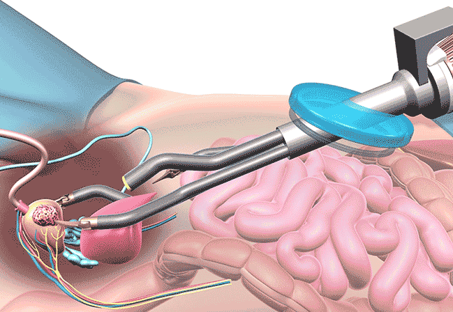grumo nelladdome dopo un intervento chirurgico alla prostata